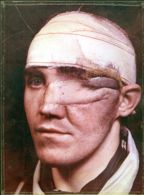 Percy Hennell, Wartimne injury of the left eye which has been removed and replaced with a flap of skin taken from the scalp or forehead which is bandaged, n.d.
